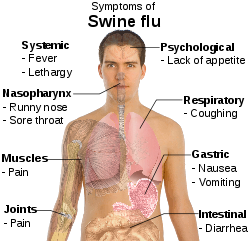 gejala flu babi