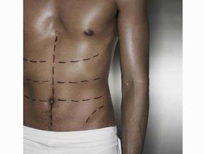 database artikel: 5 Jenis Operasi Yang Di Sukai Lelaki